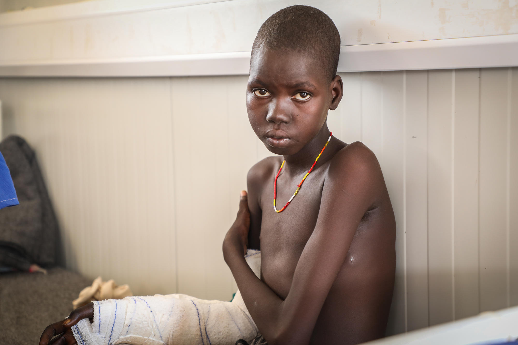 Awien Maguor, a snakebite patient in the post-op ward