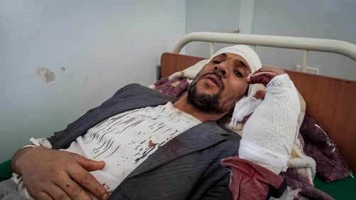 Victims of airstrike in Sanaa