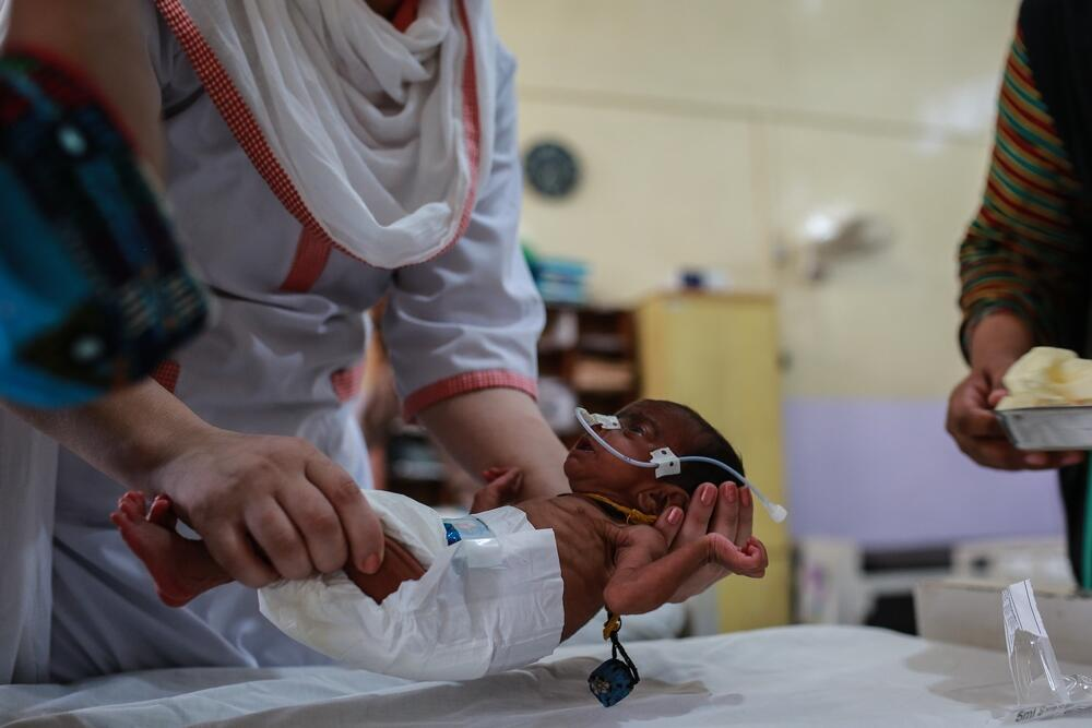 MSF nurse inserts a nasal tube into 40 day old Lal Bibi for emergency feeding. lal Bibi is admitted to the hospital with severe