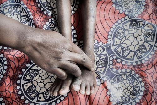 Chiradzulu: Complicated HIV clinic days