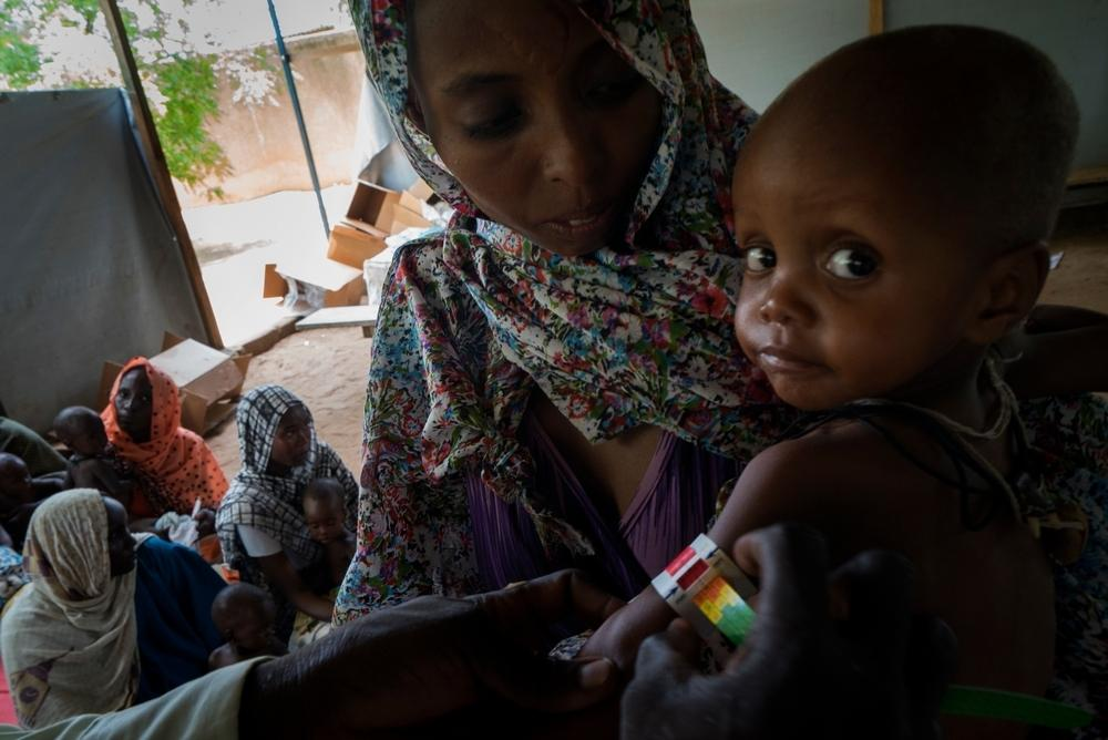 A child is screened for malnutrition using a MUAC band at at MSF's outpatient therapeutic feeding center in Bokoro, Chad