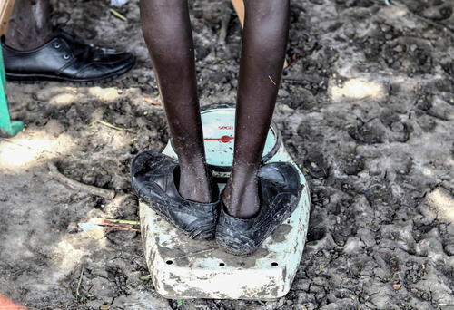 A boy weighs himself at MSF's Lanyeri clinic following flooding – Pibor, South Sudan, 10 September 2020