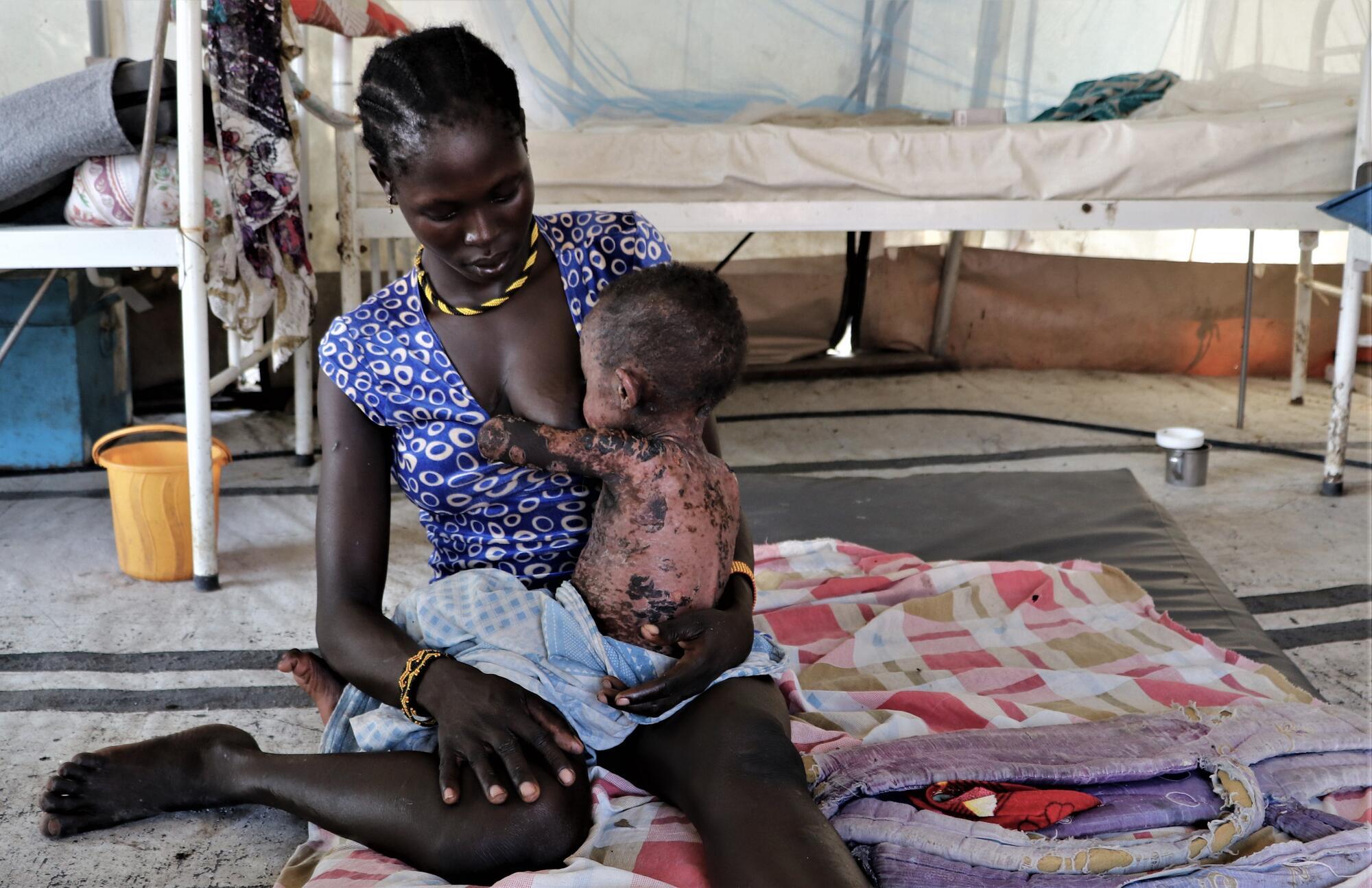 Measles outbreak in Pibor