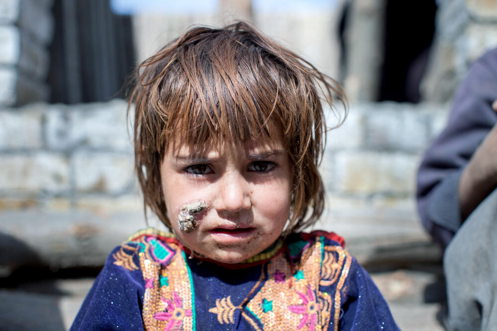 A young patient waits outside MSF's cutaneous leishmaniasis facility in Kuchlack, Pakistan
