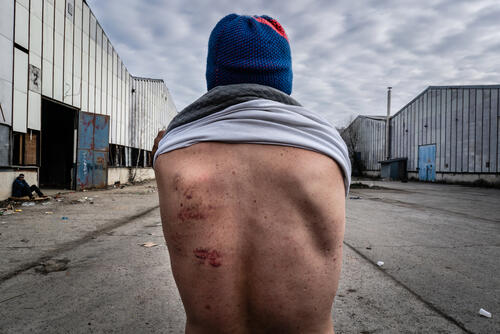 Wounds inflicted by Croatian police – Bosnia and Herzegovina, 7 February 2020