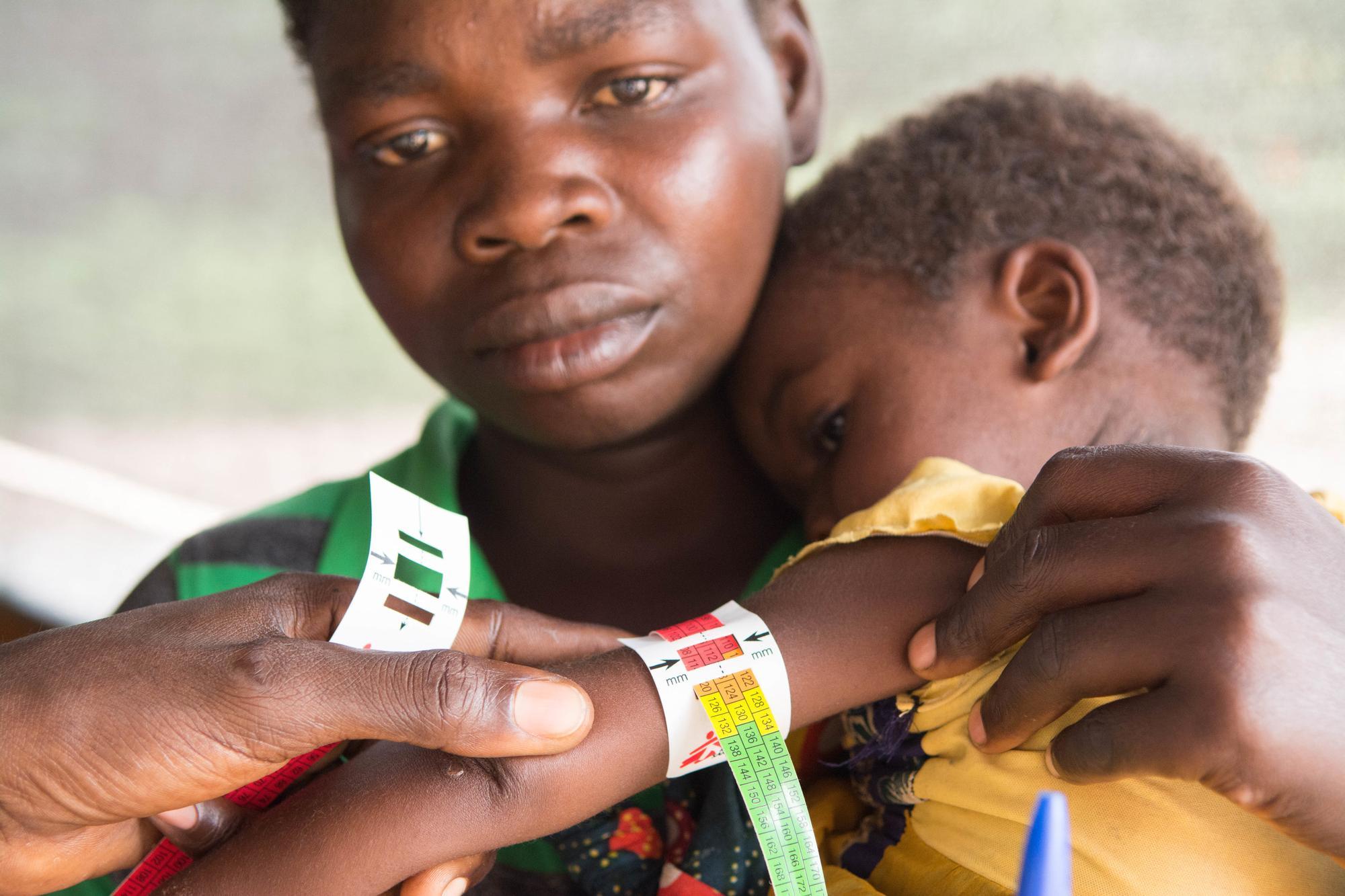 A child is assessed for malnutrition in Manono health zone, Democratic Republic of Congo.
