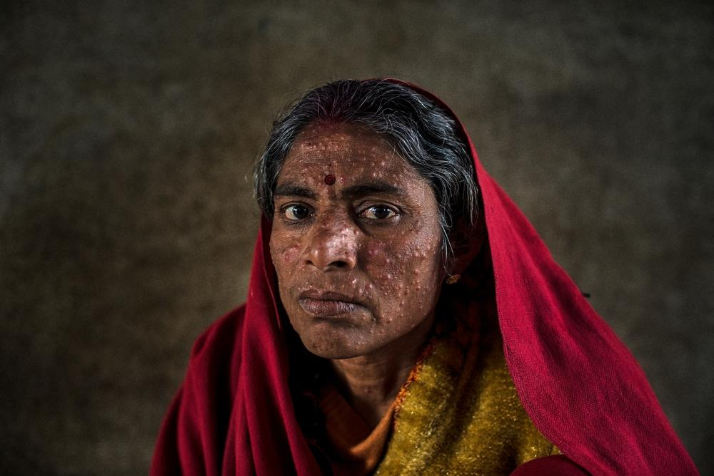 A woman with post-kala-azar dermal leishmaniasis, a complication of visceral leishmaniasis