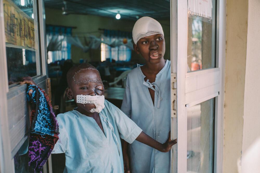 Umar and Adamu - Noma Survivors at the MSF's noma hospital in Sokoto, Nigeria.