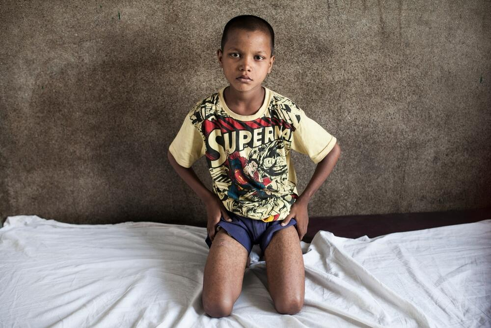 A young kala azar patient in India