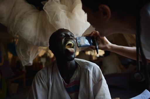 Hepatitis E outbreak in Batill refugee camp, Feb 2013