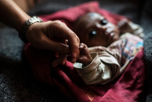 Malnutrition in Bihar, India
