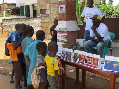 Cameroon - Buruli Ulcer sensitization week