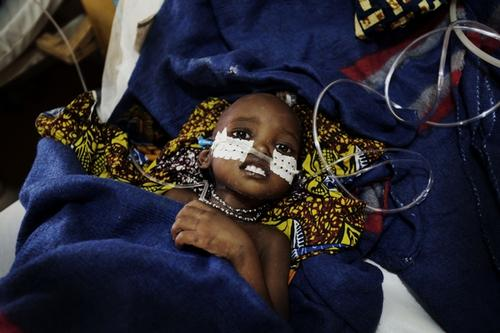 Malnutition in Niger