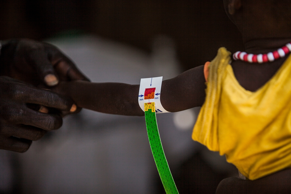Malaria and malnutrition in South Sudan, Bentiu PoC