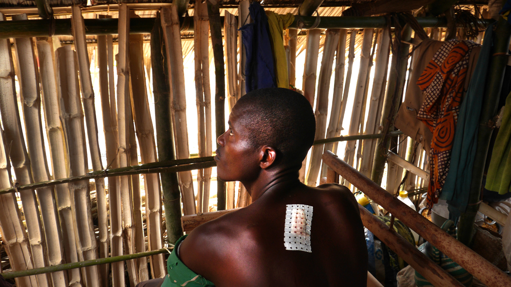 A man sitting in a bamboo hut, facing away from the camera, with a bandage on his back