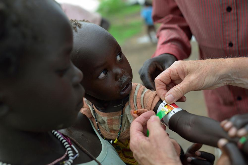 Malnutrition | MSF USA