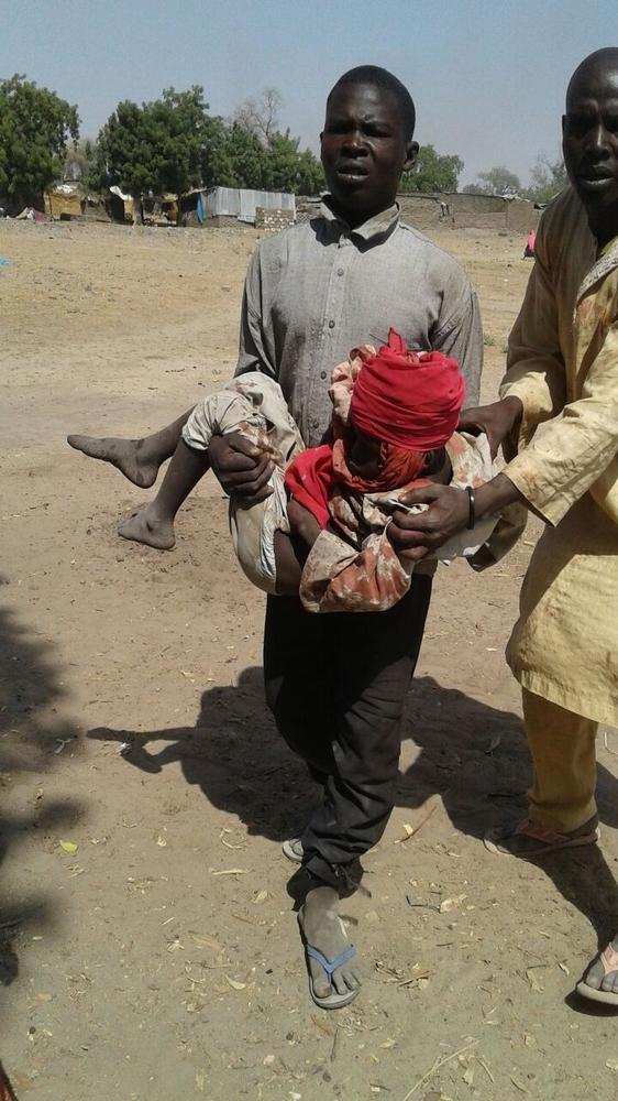 나이지리아 북동부 란 지역 실향민 캠프 폭격 피해자, 이번 폭격으로 최소 52명이 숨졌다. ⓒMSF