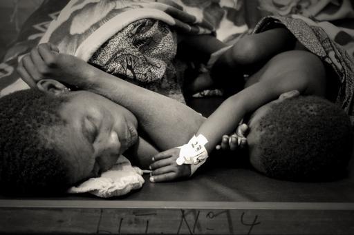 Measles outbreak in Katanga