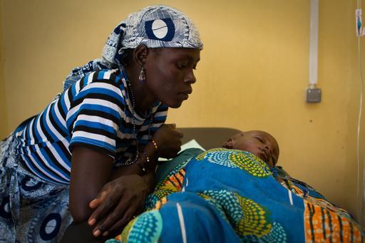 Malnutrition and Malaria Guidan Roumdji Niger
