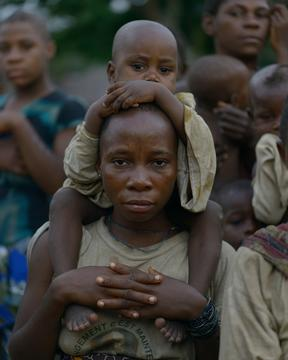 Pygmies affected by Yaws