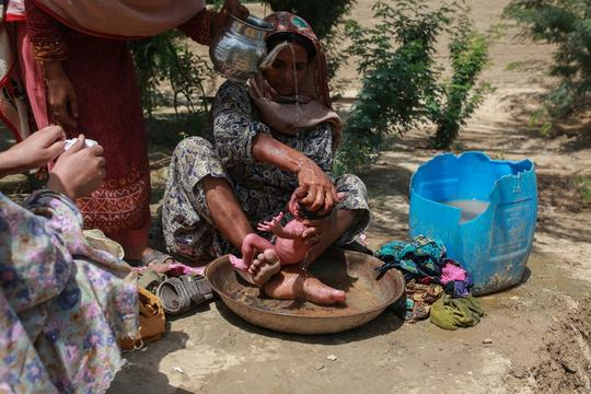 Malnutrition Resistance to Breastfeeding Balochistan
