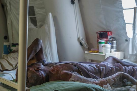 Severe burn victims in MSF Drouillard hospital