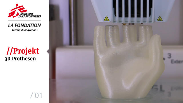 WEBCLIP: The MSF Foundation using 3D technology for prosthetics - 01 (GERMAN)