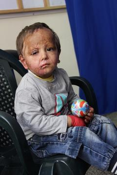 Mohammad 3 years old in Khan Younis clinic