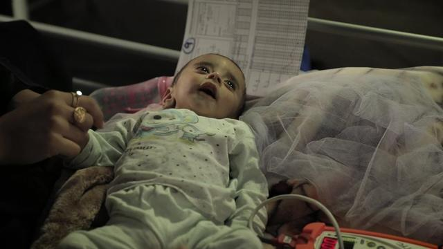 WEBCLIP: Babies suffering from malnutrition in Qayyarah (ARABIC)