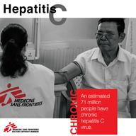 Hepatitis C - Chronic