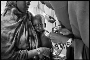 Malnutrition and measles vaccination in Mogadishu