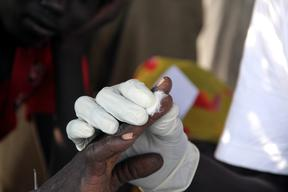 South Sudan, Aweil, malaria and malnutrition, Corinne Baker / MSF, october 2012