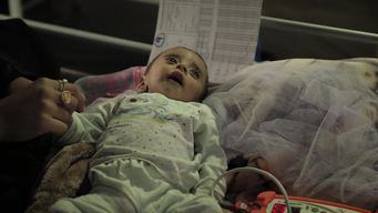 WEBCLIP: Babies suffering from malnutrition in Qayyarah (INT)