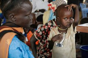 Ambulatory Therapeutic Feeding Program, Akon South Sudan