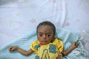 Malnutrition in Yemen - Al-Thawra hospital, Hodeidah