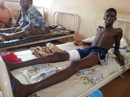 CAR, Bangui, wounds at Community hospital, Francois Beda / MSF, 29 march 2013.