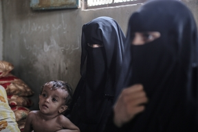 Malnutrition in Yemen