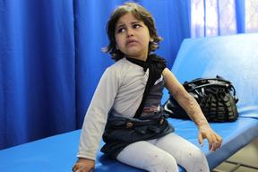 little Iman with burn injuries in Khan Younis MSF Clinic