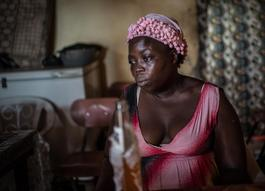 Ebola Survivor In Freetown, Sierra Leone